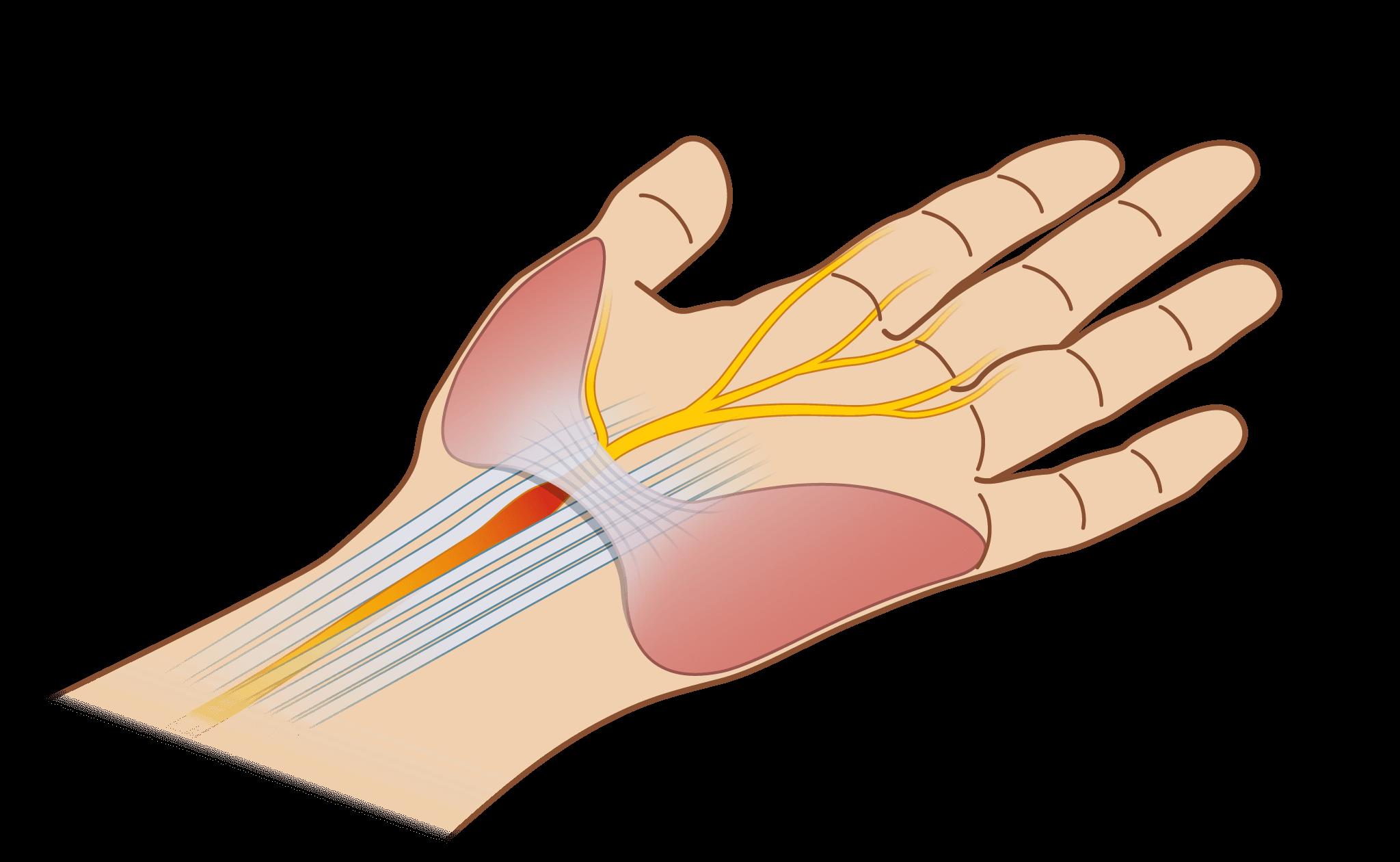Karpaltunnelsyndrom, schmerzen nach karpaltunnel operation, 8 wochen nach karpaltunnel op schmerzen, stechende schmerzen nach karpaltunnel op, karpaltunnel op schmerzen danach, nach karpaltunnel op wieder schmerzen, schmerzen im handgelenk nach karpaltunnel op, schmerzen nach karpaltunneloperation, nach karpaltunnel op schmerzen, nach karpaltunnel op schmerzen im handgelenk, brennende schmerzen nach karpaltunnel op, beschwerden nach karpaltunnel op, karpaltunnelsyndrom schmerzen nach op, karpaltunnel op danach schmerzen, karpaltunnel schmerzen nach op, karpaltunnel nach op schmerzen, handgelenk schmerzen nach karpaltunnel op, schmerzen in der hand nach karpaltunnel op, schmerzen im daumen nach karpaltunnel op