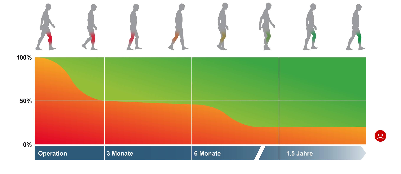 Schmerzprognose nach Knie OP