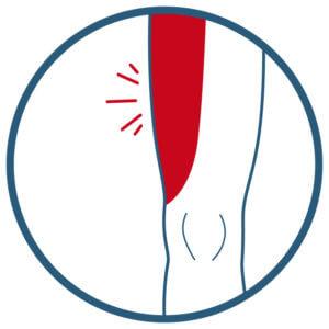 Meralgia paraesthetica, meralgia paresthetica, Schmerzen in der Leiste, nervus cutaneus femoris lateralis, Schmerzen Oberschenkel, taubheit oberschenkel vorderseite
