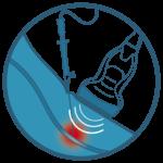 Radiofrequenztherapie, Radiofrequenz, Radiofrequenzablation, Nerv veröden, Nerven veröden