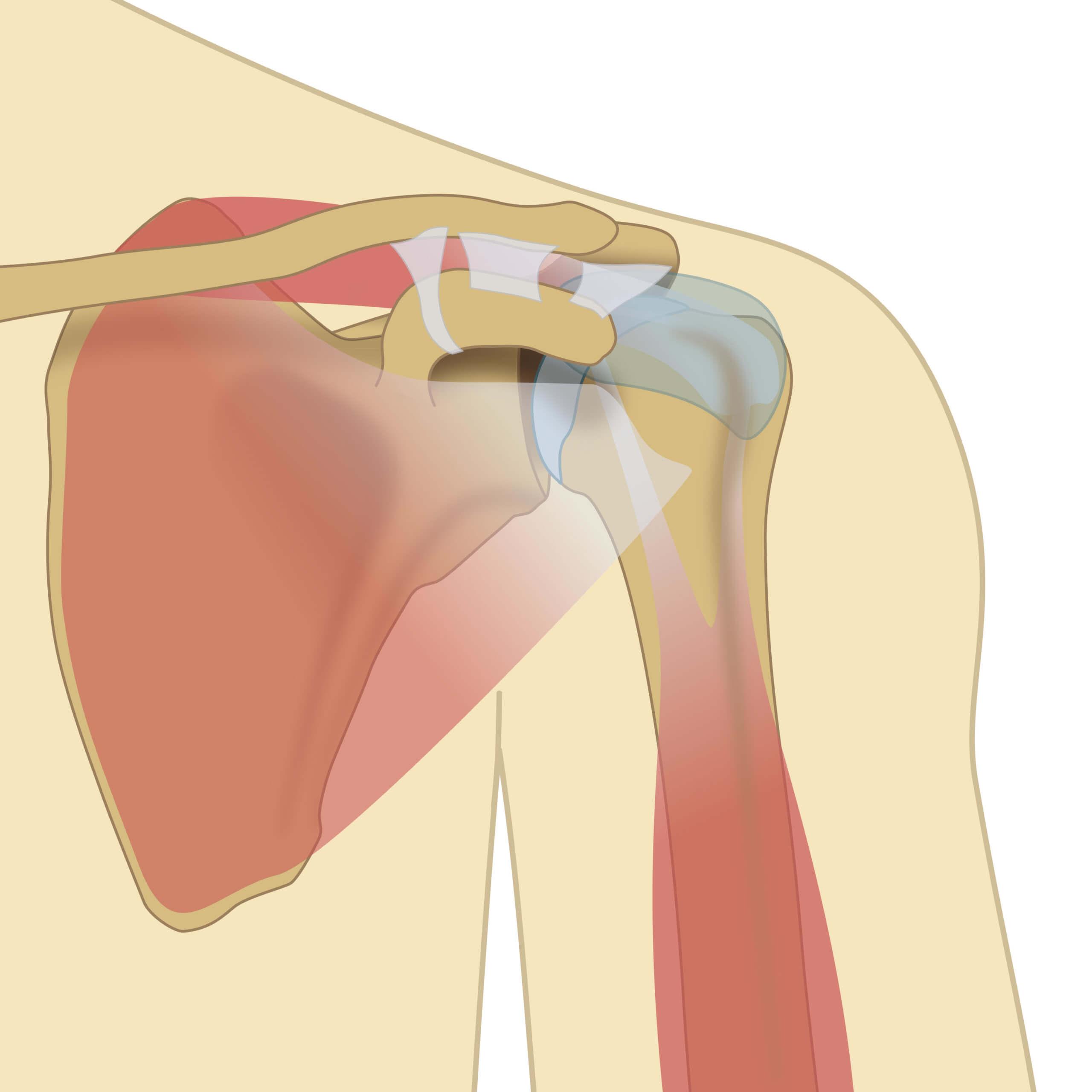 Schulterschmerz, Schmerzen Schulter, Schmerzen in der Schulter