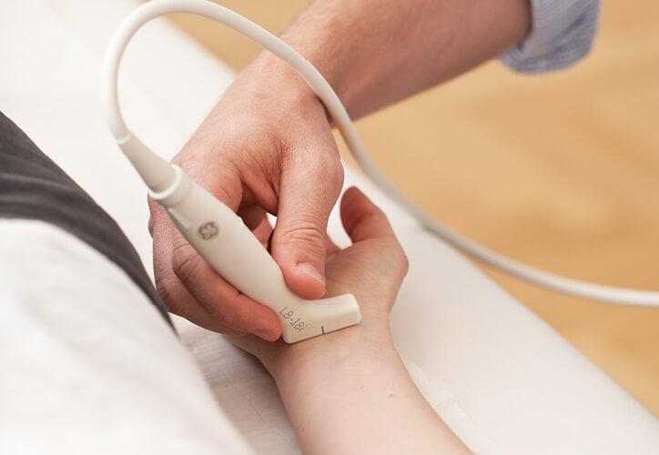 Mittelarmnerv, Ultraschall, hochauflösend, Medianus,Karpaltunnelsyndrom, Nervenschmerzen
